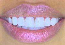 como blanquear los dientes con bicarbonato