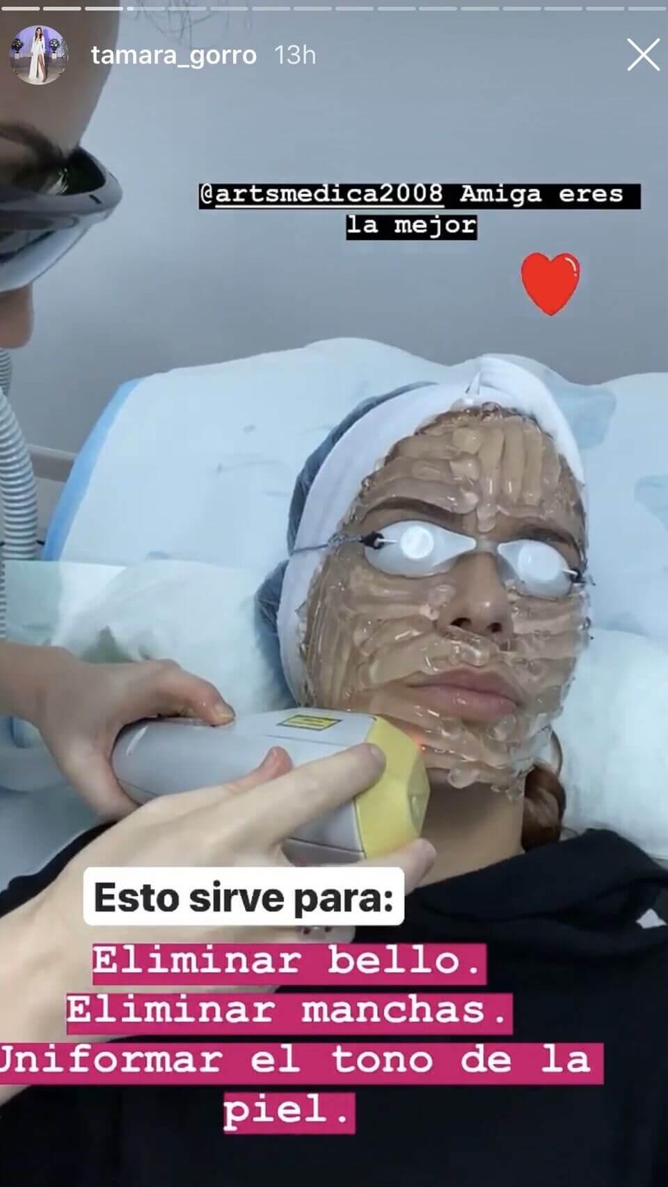Tamara Gorro Error